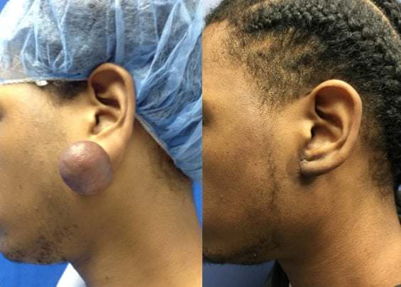 keloid removal before and after