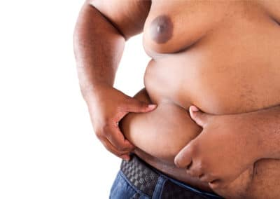Can you transfer fat to a direct family member or friend?